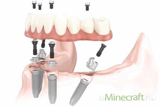 Что важно знать об имплантации зубов?